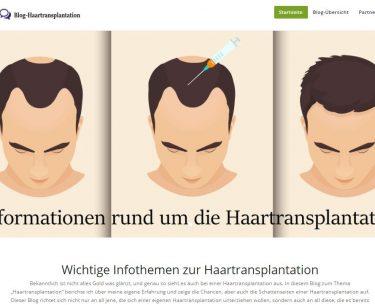 Haartransplantation-375x305 Blog Grid