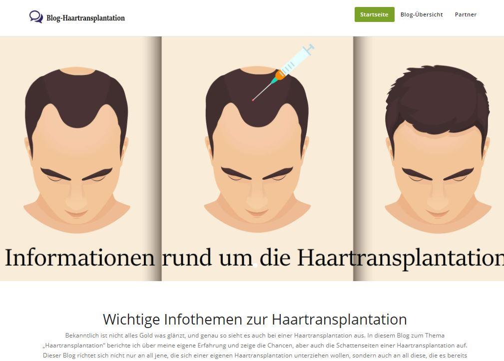 matthias-postet-alles-rund-ums-thema-haartransplantation