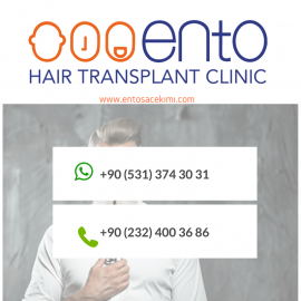ENTO Hair Transplant Clinic