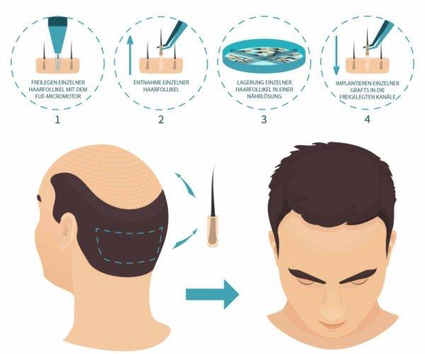 fue-haartransplantation-vor-und-nachteile