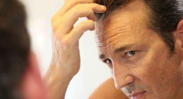 geheimratsecken_kosten_bei_hoher-_stirn-370x200 Haartransplantation - Haarverpflanzung - Haarpigmentierung - meineHaarklinik