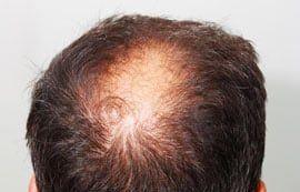 hilft-koffein-shampoo-wirklich-gegen-haarausfall