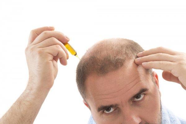 Behandlung gegen Haarausfall finden