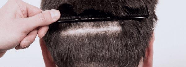 FUE-FUT-Vorteile-und-Nachteile-Haartransplantation