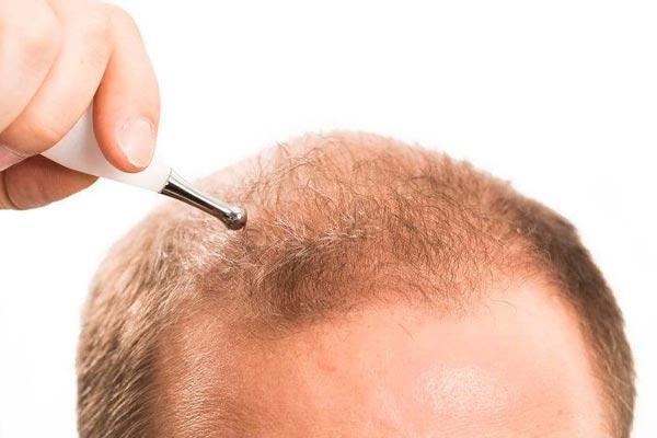 FUE-Haartransplantation-mit-Mikromotor-1