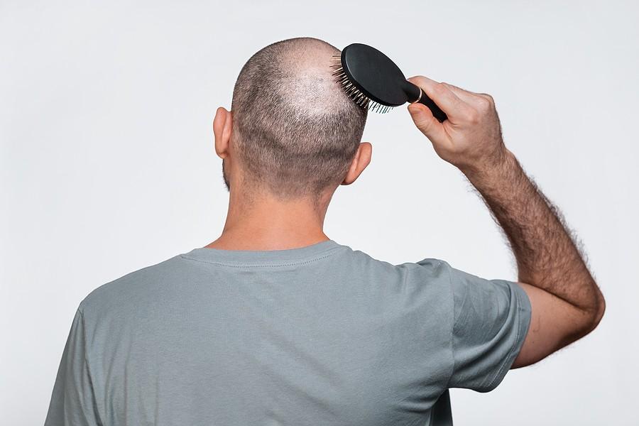 Haarausfall am Hinterkopf
