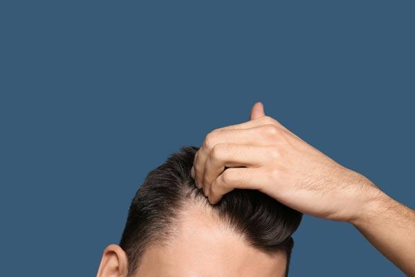Haarkorrektur Haartransplantation beim Mann