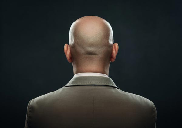 Haarpigmentierung Erfahrung 1