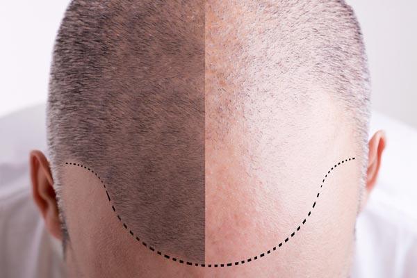 Haarpigmentierung bei Haarausfall Ergebnisse