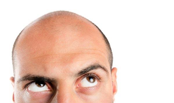 Haartransplantation-FUE-FUT-Vergleich-gegen-Haarausfall