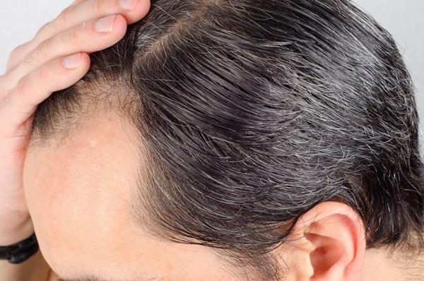 Haartransplantation-FUE-Technik-manuelle-Entnahme-gegen-Haarausfall