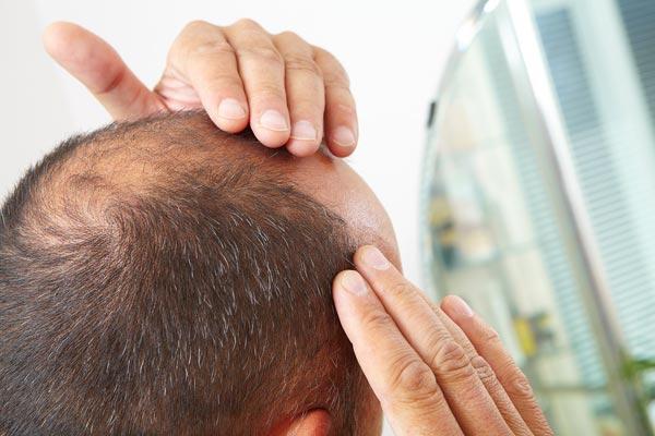 Haartransplantation bei Haarausfall Erfahrungen