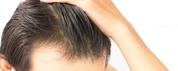 Haartransplantation-mit-der-FUT-Technik-gegen-Haarausfall-2