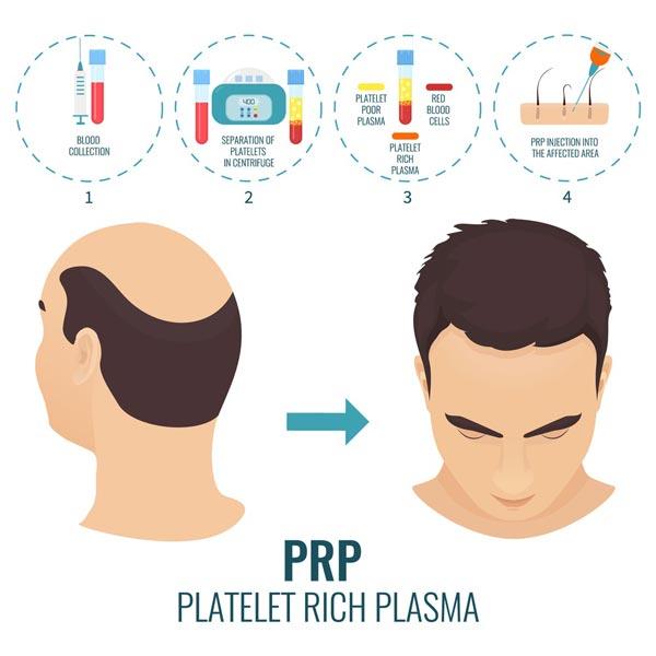 PRP-Behandlung-Haare-Haartransplantation-1