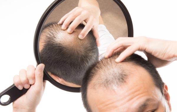 Welche-Vorteile-und-Nachteile-hat-die-DHI-Technik-bei-Haarausfall